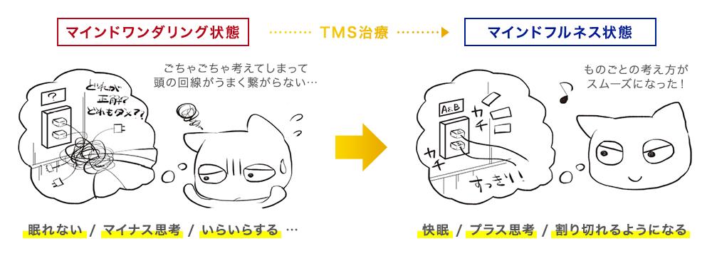 TMS治療前後での変化