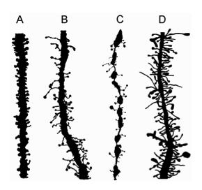 脳発達障害にみられるシナプス形態変化