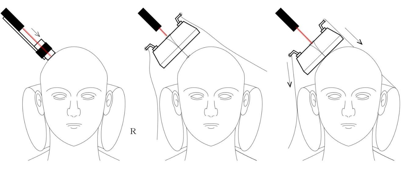 うつ病 磁気刺激治療(TMS)