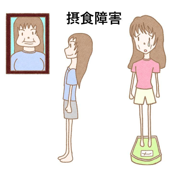 摂食障害(拒食症や過食症)の症状、原因、治療について医師が解説