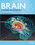 BRAIN A JOURNAL OF NEUROLOGY Volume141,Issue5,May 2018