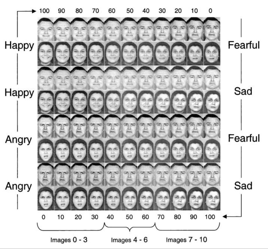 境界性パーソナリティ障害(BPD)患者の表情認知