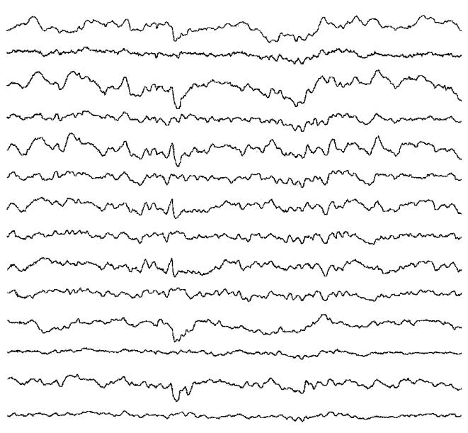 一般的な脳波検査