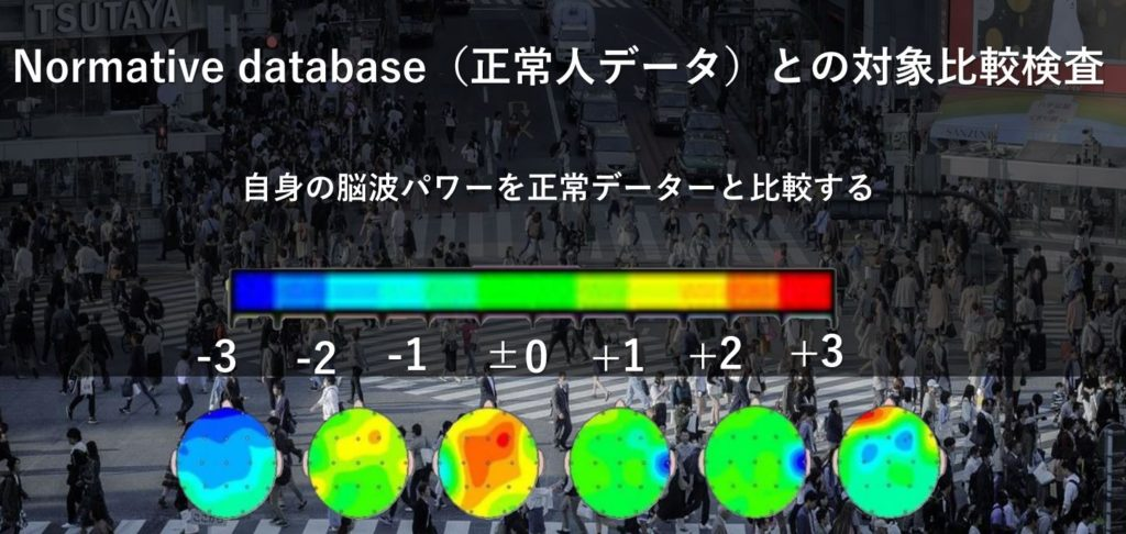Normative Database(正常人データ)との対象比較検査